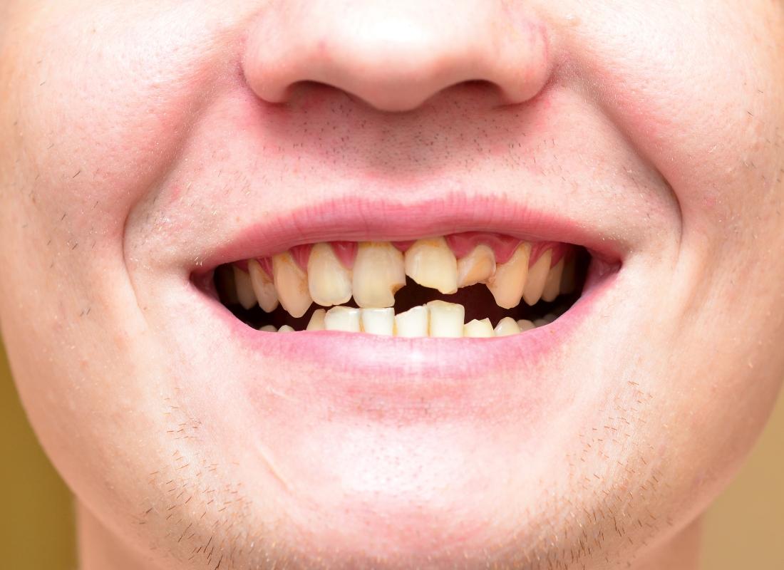 person with broken teeth